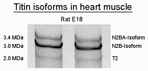 SDS-PAGE-Titin-isoform-rat-E18